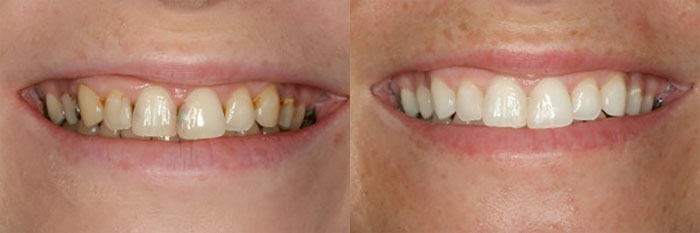 Jana K before and after treatment