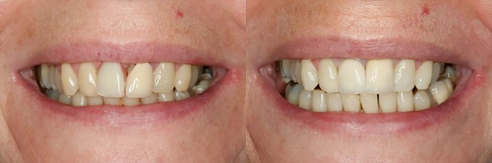 Sheila K before and after treatment