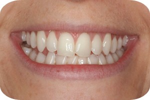 Noticeably whiter teeth after 10 days
