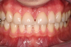 Successful veneer treatment