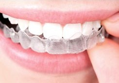 An example of what can be achieved using Invisalign