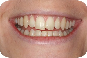 tooth-whitening-1b