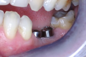 The implant posts ready for teeth to be added