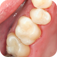 White fillings provide a natural look